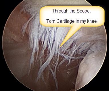 130113 Knee Surgery